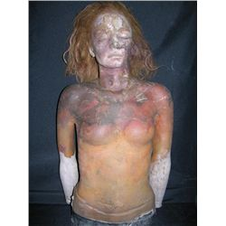 Gabrielle Anwar Upper Body Prosthetic