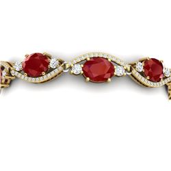 22.15 CTW Royalty Ruby & VS Diamond Bracelet 18K Yellow Gold - REF-418T2X - 38963