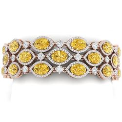 43.84 CTW Royalty Canary Citrine & VS Diamond Bracelet 18K Rose Gold - REF-1018M2F - 38902