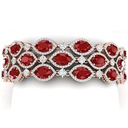 52.84 CTW Royalty Ruby & VS Diamond Bracelet 18K Rose Gold - REF-1181N8Y - 38890