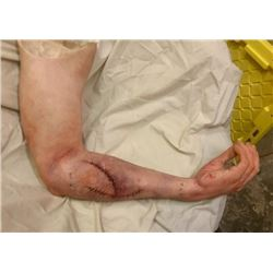 NINETY MINUTES IN HEAVEN SCREEN USED HAYDEN CHRISTENSEN SILICONE POST OP ARM