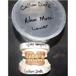 THE KNICK ADAM MUCCI TEETH